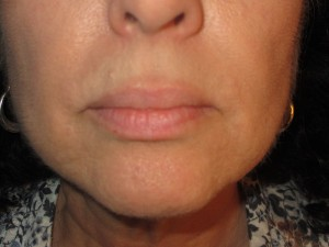 electrolysis case study - vivian after treatment on the chin and upper lip