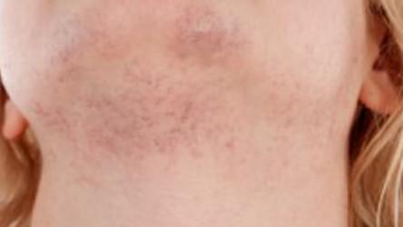 facial hair women causes