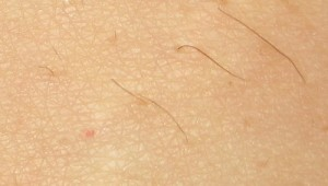 Shave Before Electrolysis Hair Removal treatment? - Follikill
