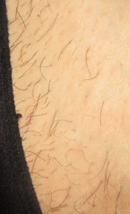 electrolysis case study - bikini line prior to electrolysis treatment
